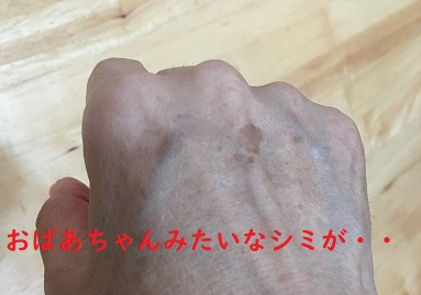 手の甲のシミが突然できてしまった時にやるべきこと!